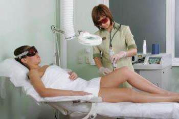 удаление лазером волос