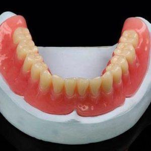 съёмный зубной протез