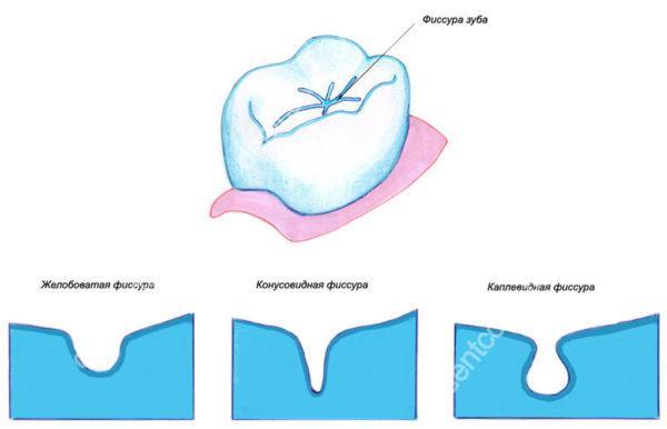 фиссура молочных зубов, для чего делать