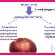 лечение алопеции облысения